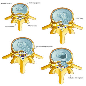 Image from : mountainviewpaincenter.com